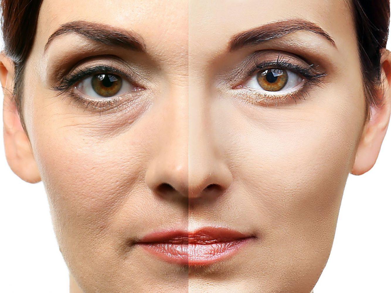 imagen de blefaroplastia-clinica-renacimiento-madrid-y-marbella