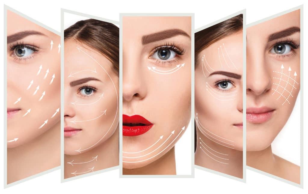 imagen de hifu facial renacimiento madrid marbella