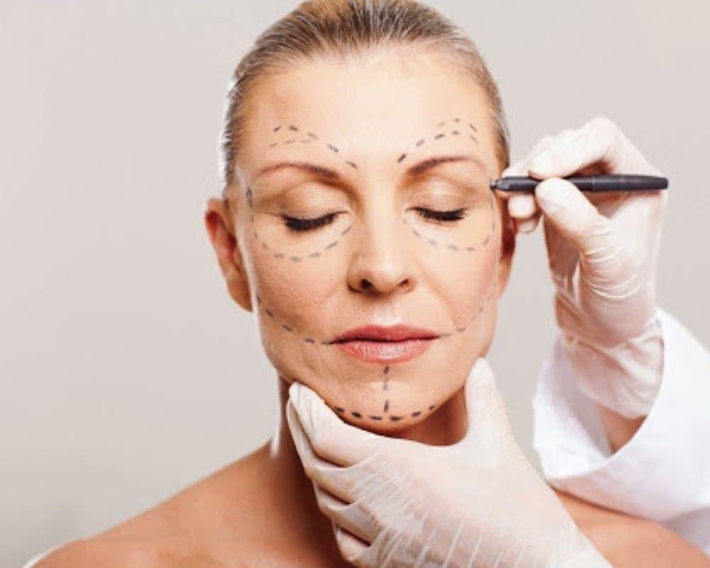 imagen de lifting facial cirugia estetica facial clinica renacimiento