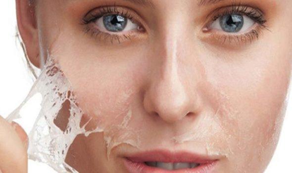 imagen de peeling clinica renacimiento madrid y marbella estetica facial
