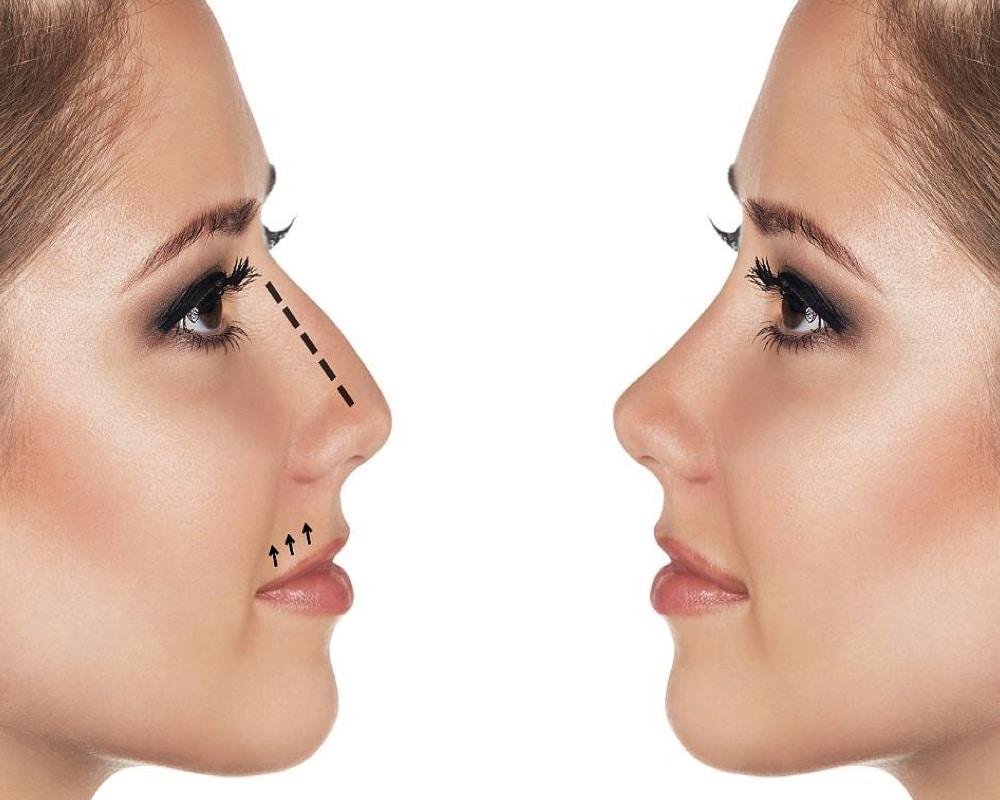 imagen de rinomodelacion clinica renacimiento madrid y marbella estetica facial