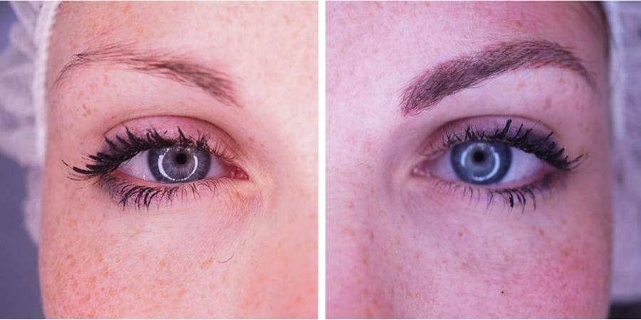 imagen de caso real micropigmentacion de cejas clinica renacimiento marbella