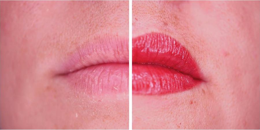 imagen de caso real micropigmentacion de labios clinica renacimiento marbella